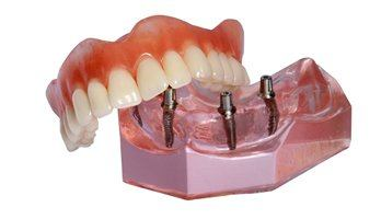 dental implants and denture