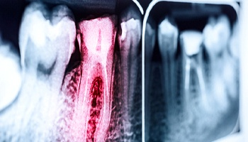 dental X-ray that shows an infected tooth