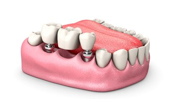 Three or more missing teeth and two dental implants