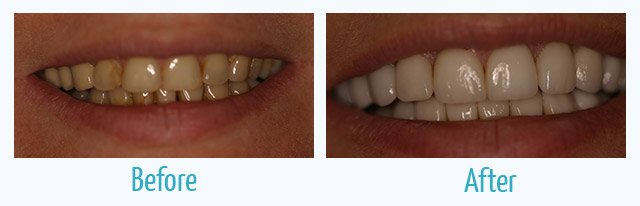 patient's smile before and after veneers