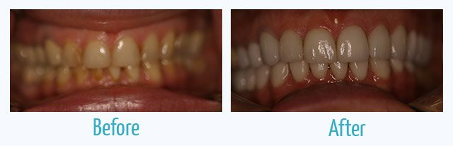 patient's teeth before and after veneers