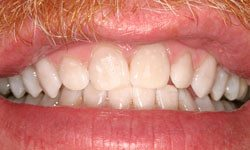 Whitening patient 1 after