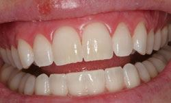 Whitening patient 2 after