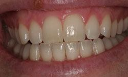 Whitening patient 2 before