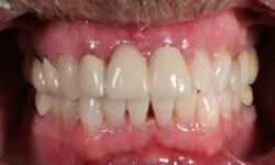 whitening patient 3 after