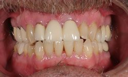 whitening patient 3 before
