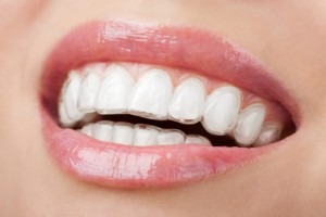 smile with los angeles invisalign alignment trays