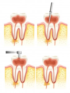Illustration of a Dental root canal deterioration on a white background