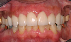 Los Angeles Porcelain Veneers