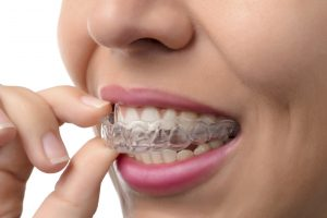 With Invisalign in West Los Angeles, you can make someone's smile beautiful.