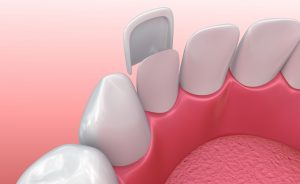 Wondering how you can fix cracks, chips, stains, and short teeth in one treatment? Your cosmetic dentist in Los Angeles explains how here.