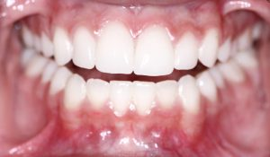 Receding gums in Los Angeles can be treated.