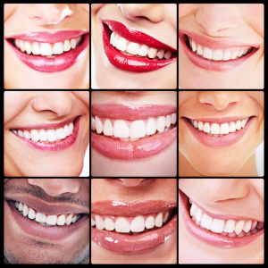 women smiling white teeth