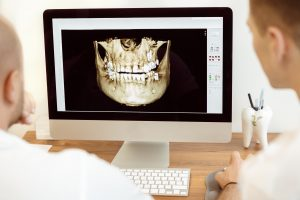 image of digital dental x-ray